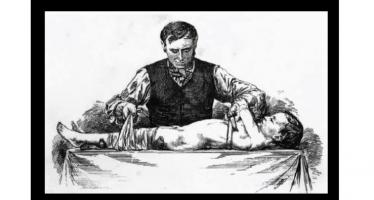 Daniel Radcliffe Clarke – The Bonesetter